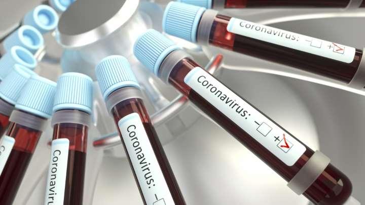 Argentina fue seleccionada para probar la vacuna de Pfizer contra el coronavirus